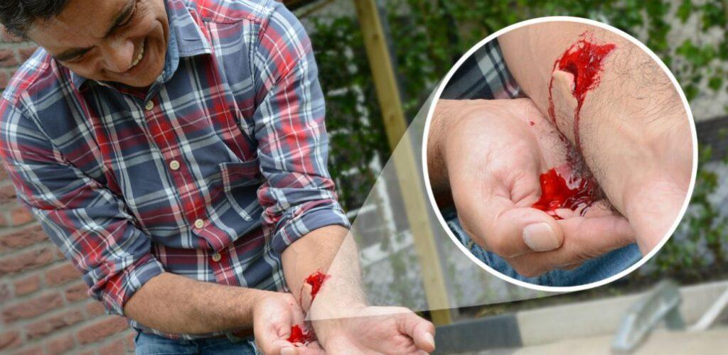 Bloeding